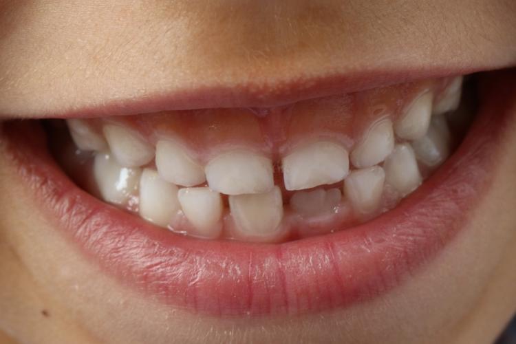 Aż 40% 3-latków ma próchnicę - jak prawidłowo dbać o zęby maluchów