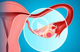 Zaburzenia owulacji a starania o ciążę